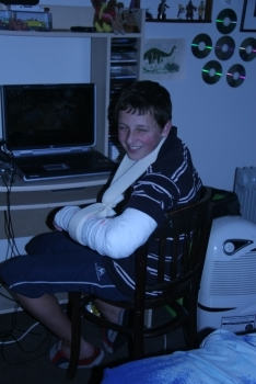 Lachlan sporting full arm cast!
